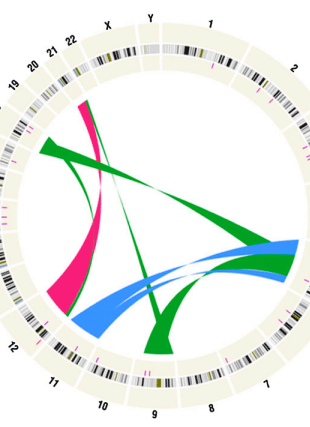 Circular genome visualization and data visualization with Circos: Developmental timing of mutations revealed by whole-genome sequencing of twins with acute lymphoblastic leukemia (310 x 427)
