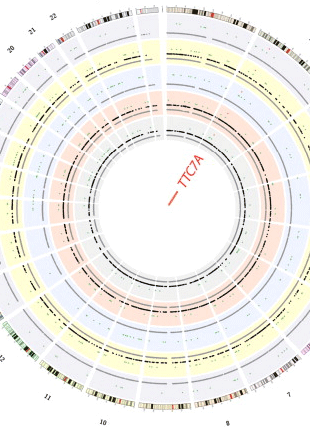 Circular genome visualization and data visualization with Circos: Whole-exome sequencing identifies tetratricopeptide repeat domain 7A (TTC7A) mutations for combined immunodeficiency with intestinal atresias (310 x 427)